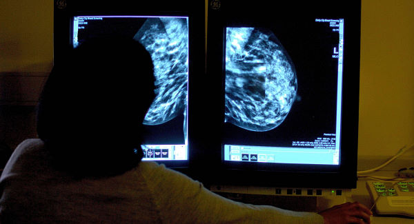 €3m breast cancer treatment unit opens at University Hospital Limerick | Irish Examiner