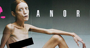 Anorexia models that died