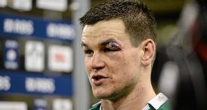 Jonathan Sexton's eye injury.