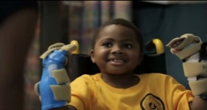 VIDEO: This kid became the youngest person to get a double hand transplant